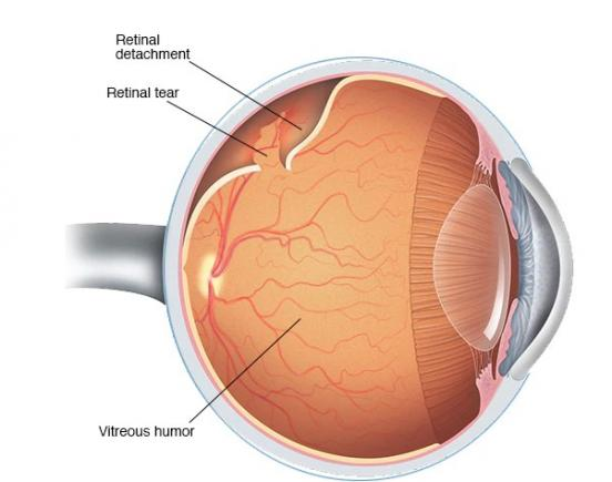 Diagram of a detached retina.