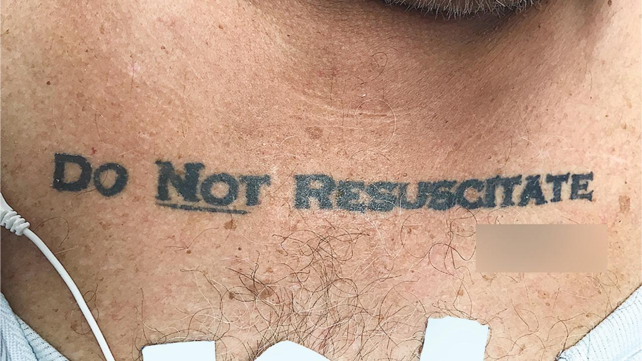 Patients Do Not Resuscitate Tattoo Leaves Doctors With Dilemm