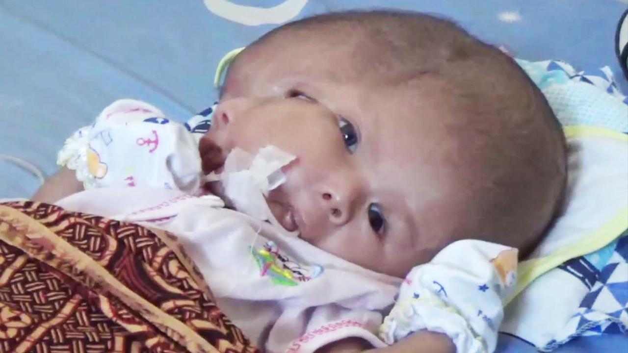 A child born with a brain outside the skull is another miracle