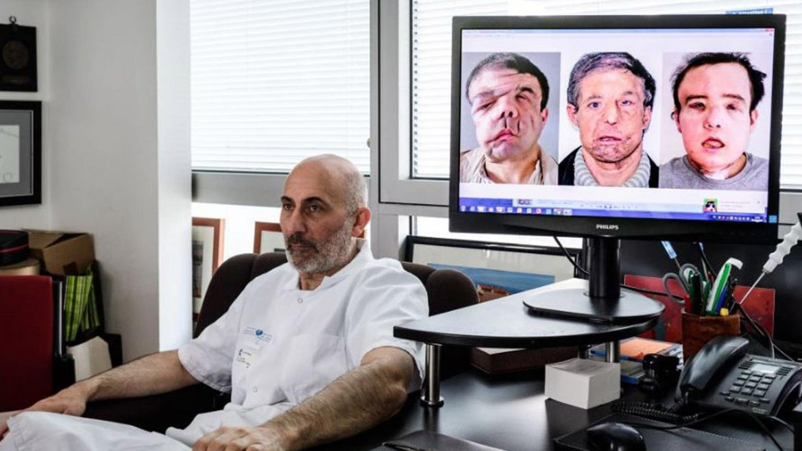 Jerome Hamon suffered from condition that caused disfiguring tumors.