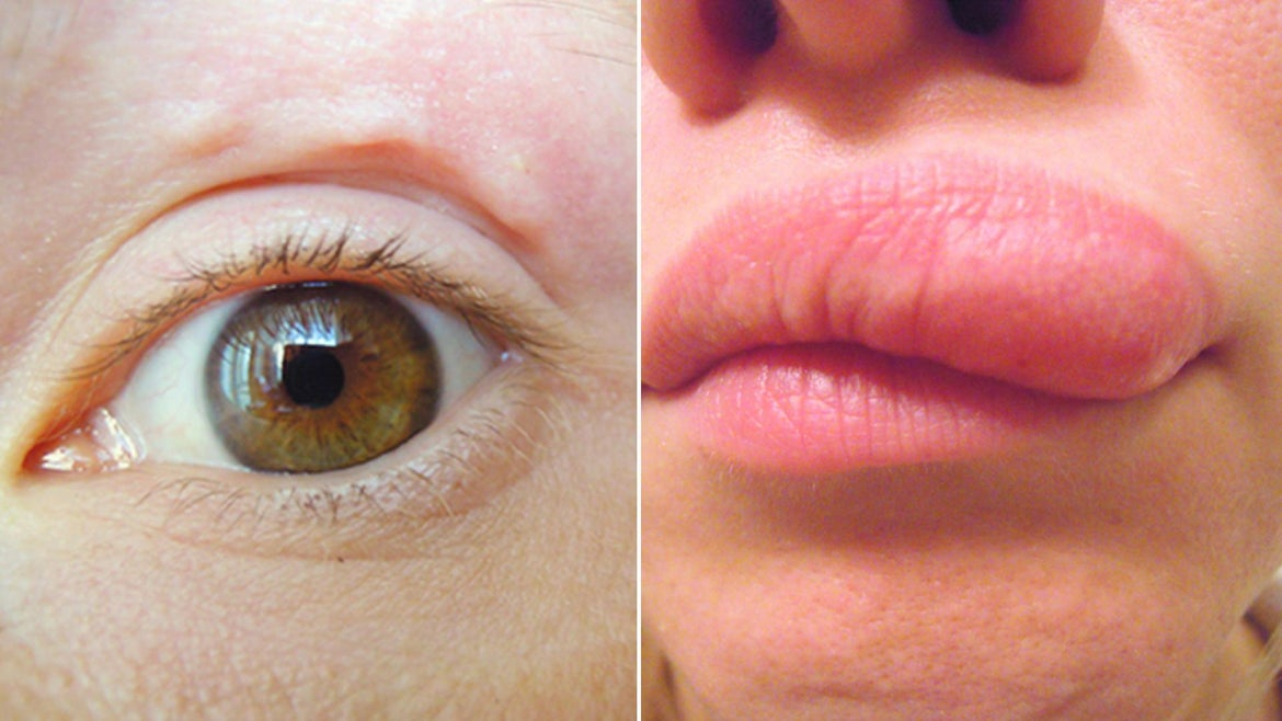 A woman began noticing bumps above her eye, which turned into a swelling of the lip.
