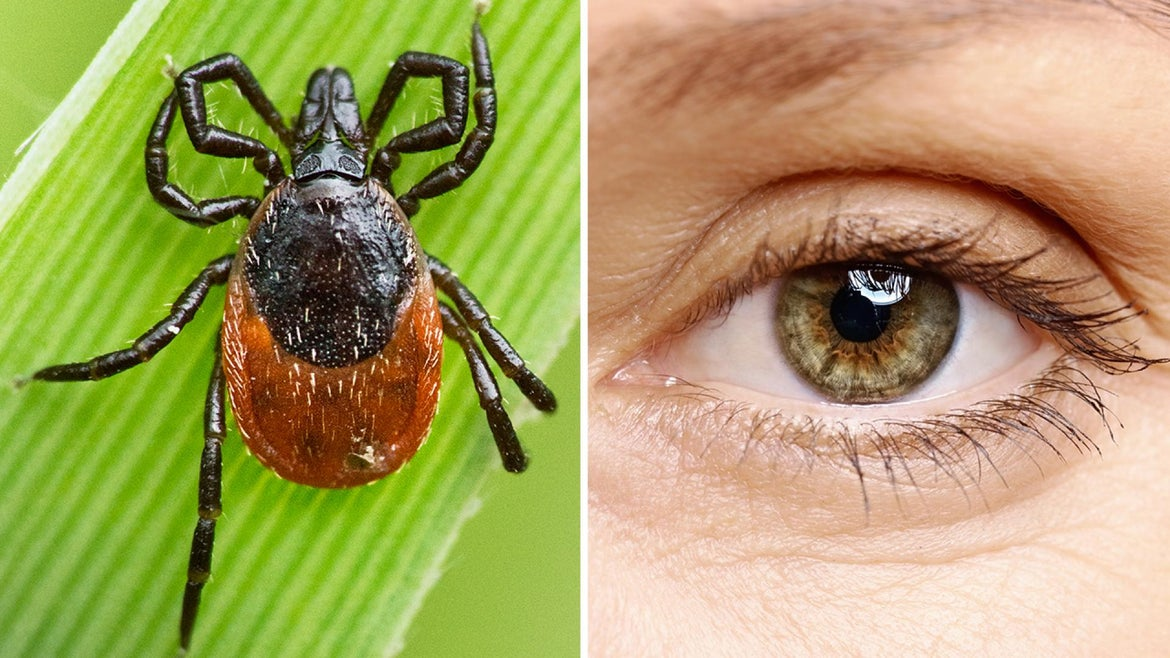 A man went to the doctor with a tick in his eye.