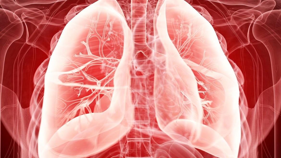 A COVID-19 patient received a life-saving lung transplant for the first time in Europe last week.