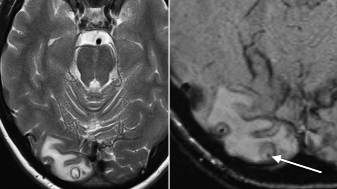 The MRI showed a cyst surgeons later discovered to be filled with tapeworm larvae.