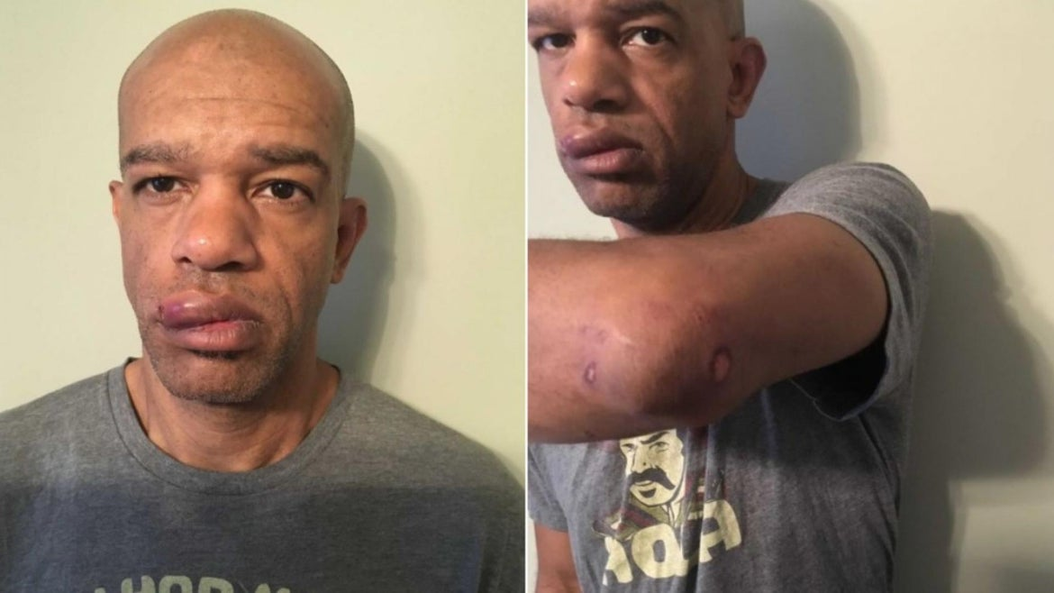 Det. Luther Hall was seriously injured by fellow officers who attacked him while he worked undercover.